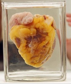 Kardiomiopatia zaciskająca