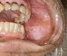 Rogowacenie-obcosiedliskowe-śluzówki-jamy-ustnej