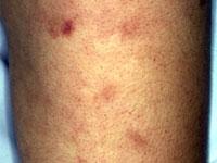 guzkowe-zapalenie-tętnic