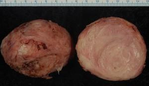 Mięśniak gładkokomórkowy