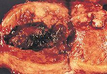 Rozrost gruczołowy błony śluzowej macicy