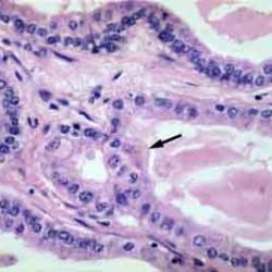 Rak wątrobowokomórkowy