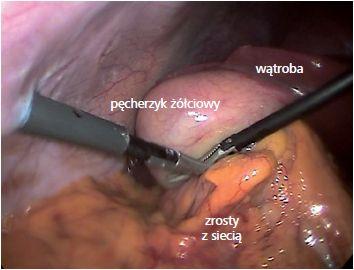 Zapalenie pęcherzyka żółciowego