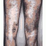 szkorbut-nogi