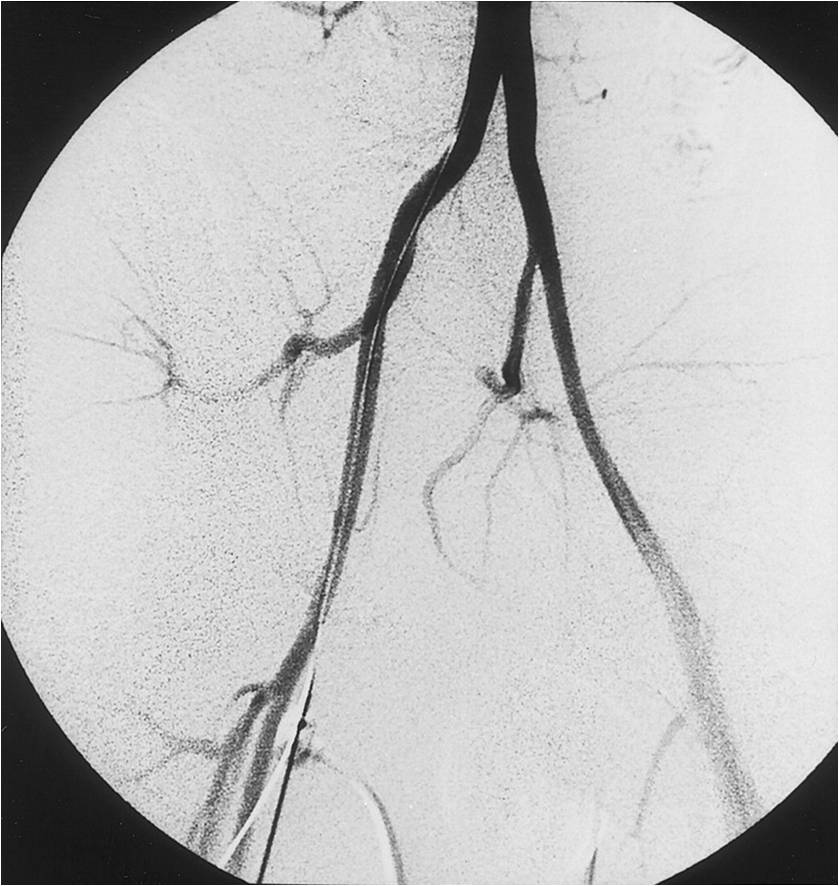 Abraham P, Chevalier JM, Loire R i wsp. External iliac artery endofibrosis in a young cyclist. Circulation 1999; 100: e38.