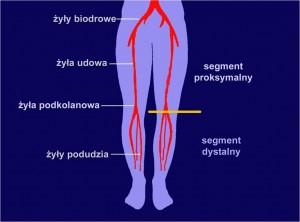 Zakrzepowe zapalenie żył głębokich kończyn dolnych
