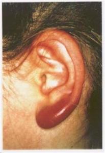 Chłoniak limfocytarny skóry