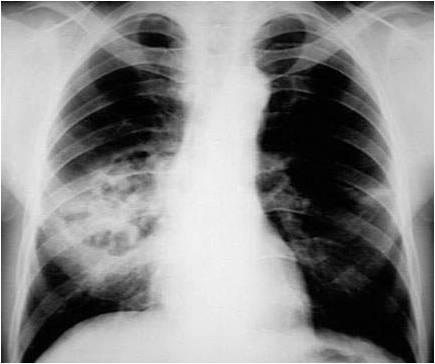 Gronkowcowe zapalenie płuc