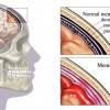 Gruźlicze zapalenie opon mózgowo-rdzeniowych