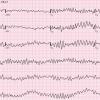 Migotanie komór serca