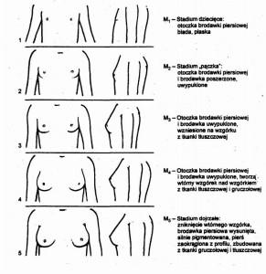 Stadia rozwoju piersi u dziewcząt skala Tannera