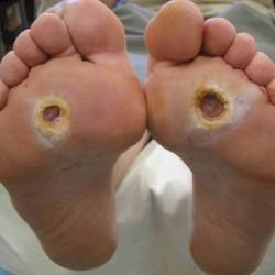 Zespół stopy cukrzycowej