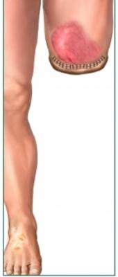 amputacja nogi