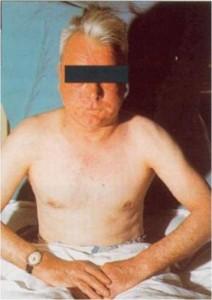 ciężka przewlekła choroba obturacyjna płuc