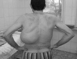 guzy klatki piersiowej