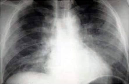 miąższowe zapalenie płuc