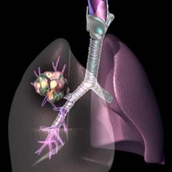 przerzuty nowotworowe do pluc