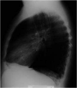 przewlekła  obturacyjna  choroba płuc profil