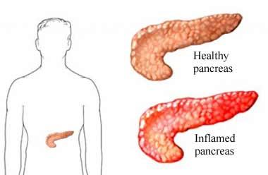 Zapalenie Trzustki Leczenie Objawy I Przyczyny